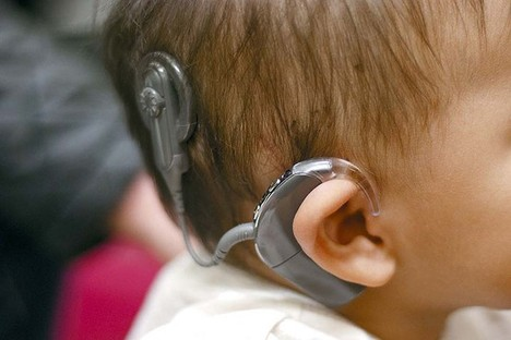 CochlearImplant2013-11-15.jpg